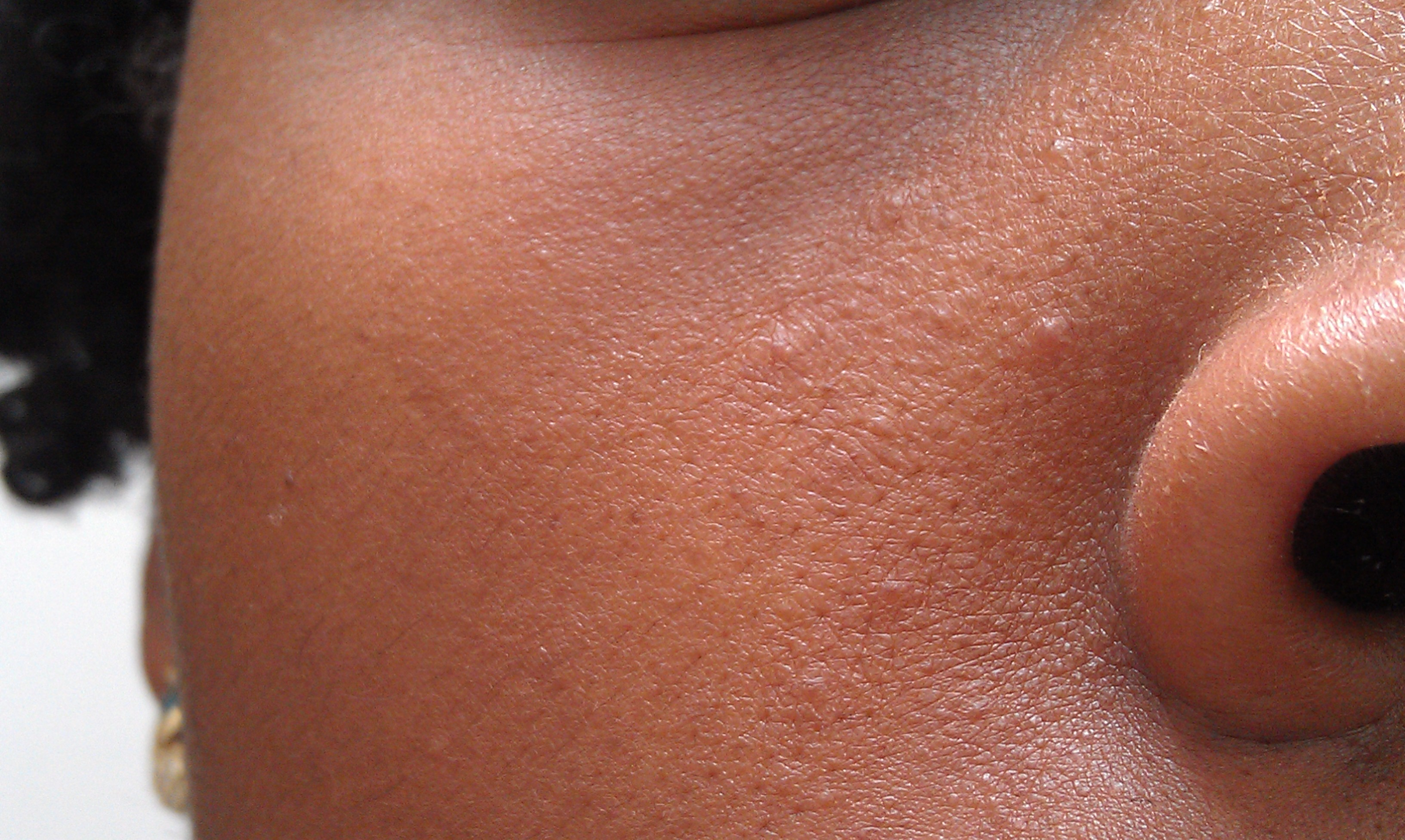 Photos facial skin bumps